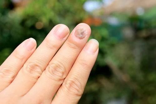 Onicomicose da mão