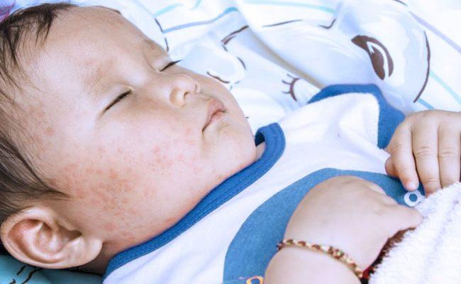 Roséola Exantema Súbito Causas Síntomas Y Tratamiento