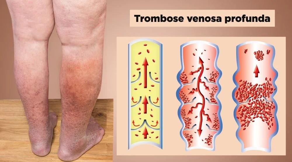 tromboembolismo pulmonar causas e