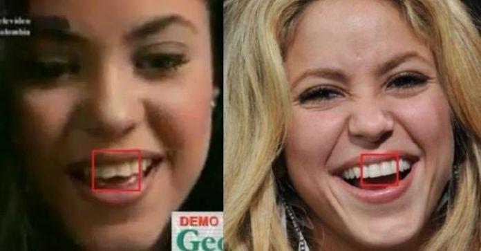 Shakira teeth