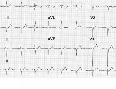 Abbildung 3: EKG – Schmerz