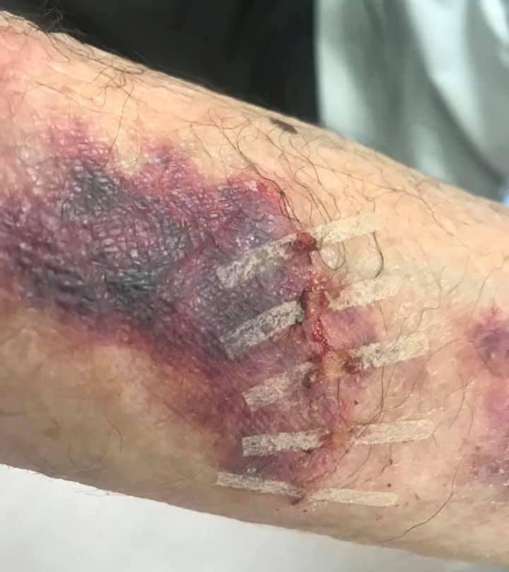 Caz leziune produsa prin accidentare cu un corp de mobilier