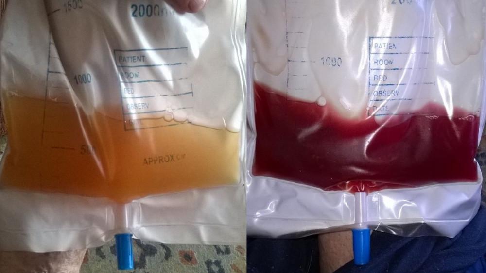Ce accidente se pot produce in cateterizarea uretrala?