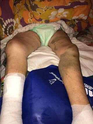 Ce accidente se pot intampla la toaletarea unui pacient complet NEDEPLASABIL ?2