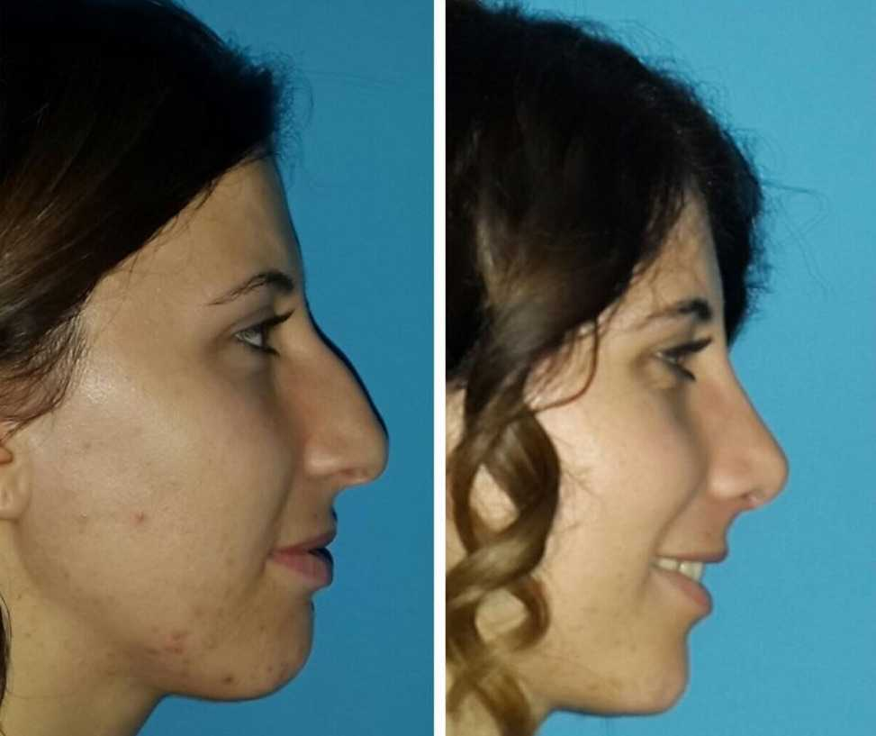 Nose Job in Turkey  Low Cost Cosmetic Treatment Packages | MedAway