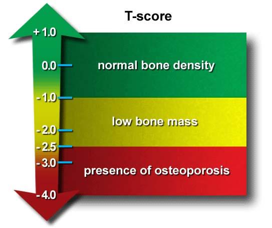 osteoporosi-2