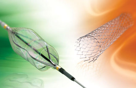 Abbott S Stent To Treat Patients At Risk Of Stroke