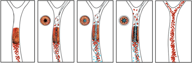 clot-busting-nano-drugs