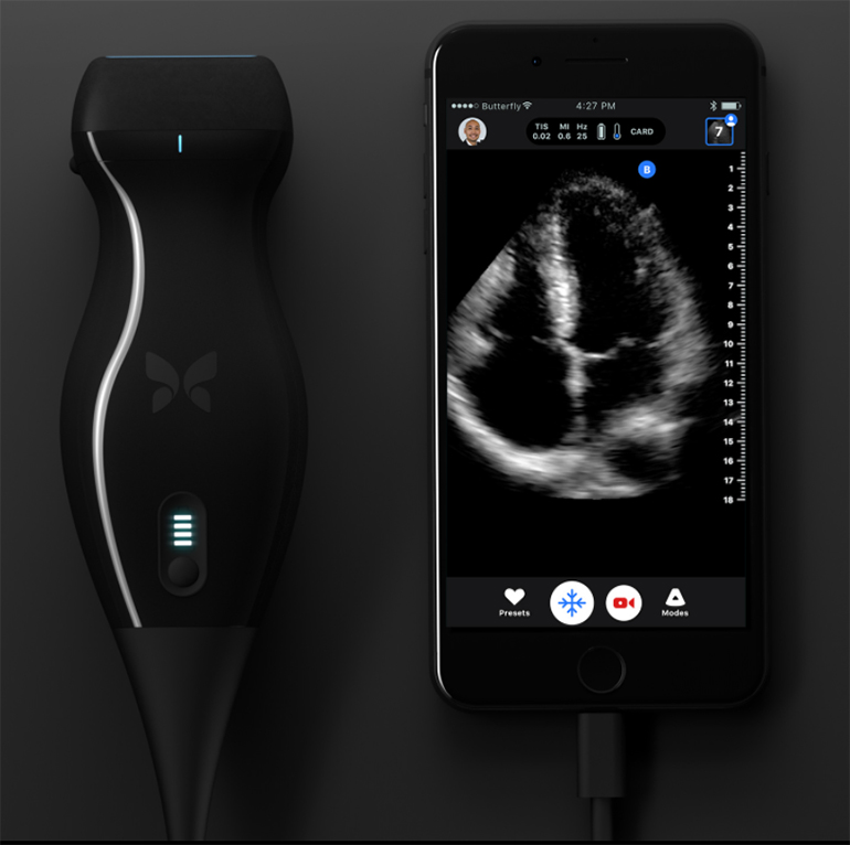 Butterfly iQ a Whole Body Ultrasound That Fits in a ...