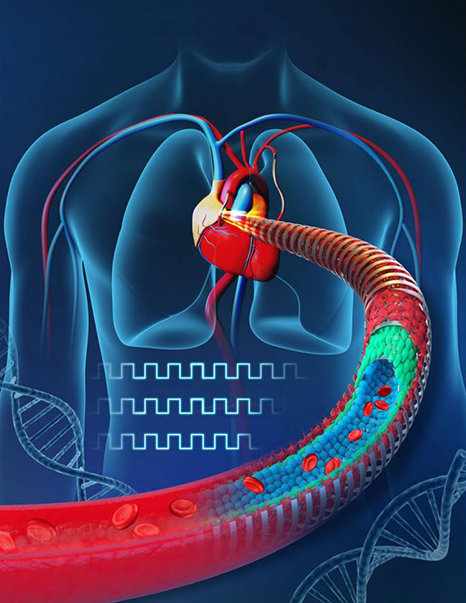 Electronic Blood Vessels to Replace Diseased Vasculature 4