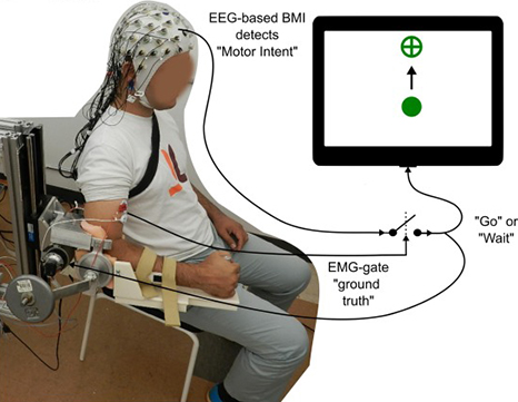 Brain-Machine Interface and Exoskeleton Improve Stroke Rehab 4