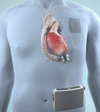 Fully Implantable LVAD for End-Stage Heart Failure: Interview with Greg S. Aber, CEO of Corvion 2