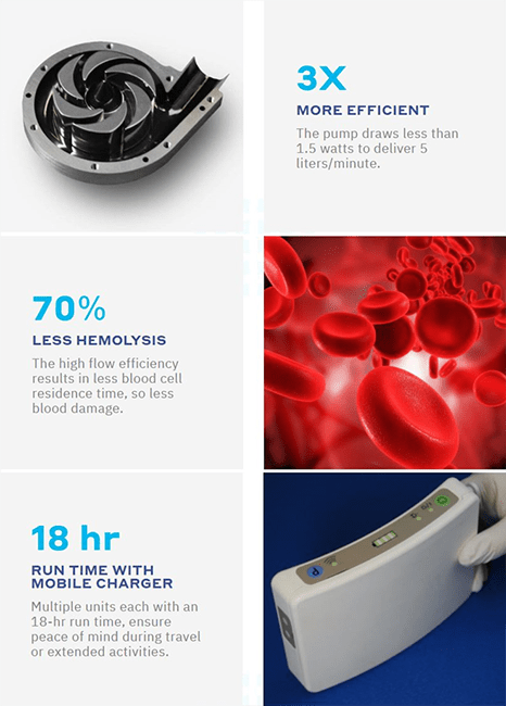 Fully Implantable LVAD for End-Stage Heart Failure: Interview with Greg S. Aber, CEO of Corvion 6