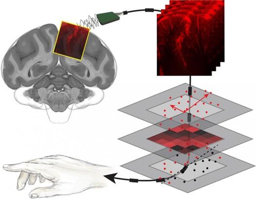 Ultrasound Technology to Decode Brain Activity for Brain Machine Interfaces 4