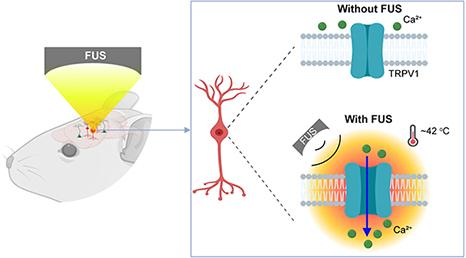 Non-Invasive Deep Brain Stimulation Using Ultrasound and Genetic Modification 6