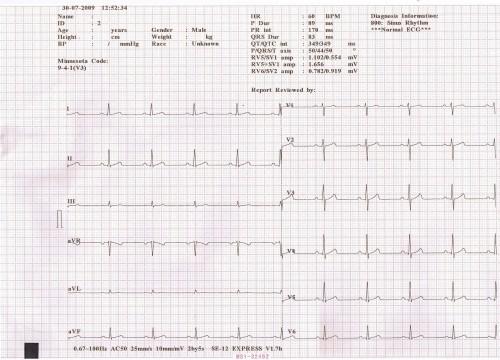 EDAN SE-12 Multi channel ECG