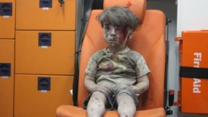 Omran Daqneesh in Syria. Photo Credit: AFP