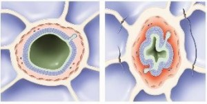 Developing chronic respiratory failure