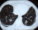 Asbestose (fibrose pulmonaire)