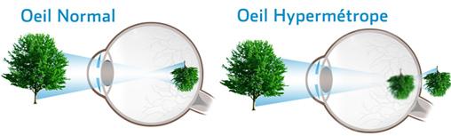 oeil hypermétrope
