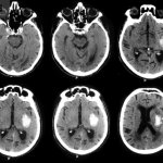 Stroke – Haemorrhagic