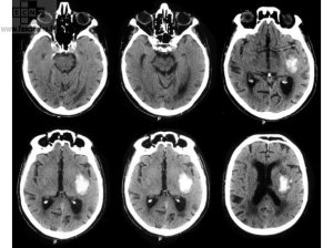 Hemorrhagic Cerebral Vascular Accident