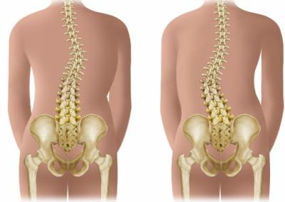 Scoliosis: Clinical and Therapeutic Point of View