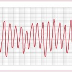ECG heart rhythm disorders