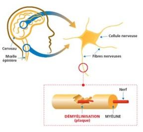 Sclérose en plaque