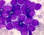 Leucémie aiguë lymphoblastique