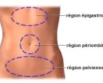 Douleurs pelviennes gynécologiques