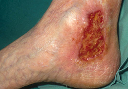 Ulcere du pied definition