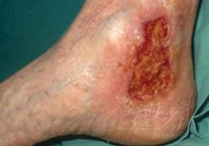 Ulcère veineux de jambe