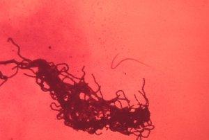 Érysipelothrix Rhusiopathiae