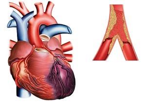 Markers infartus infarction - myoglobin, troponin and isoenzyme of creatine kinase