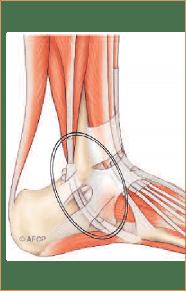 Tendons fibulaires