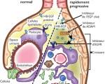 Glomérulonéphrites aiguës postinfectieuses