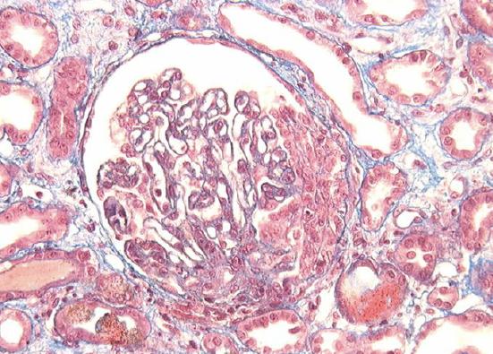 Extracapillary glomerulonephritis