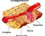 Troubles de l'hémostase