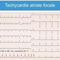 Flutter Auriculaire et Tachysystolie Auriculaire