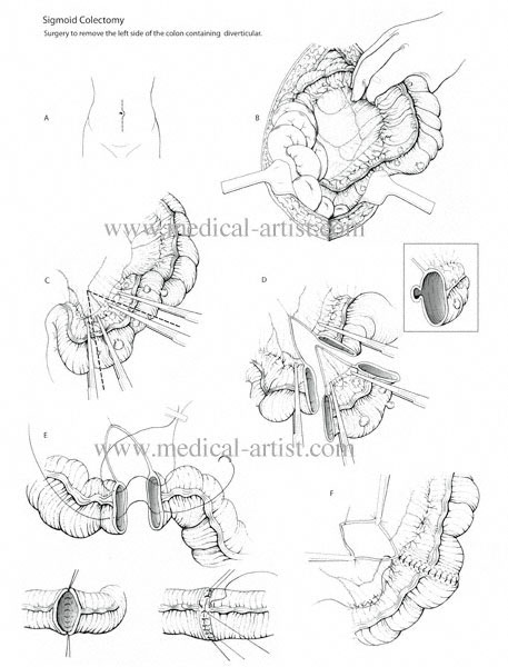 Sigmoid Colectomy Surgical Sequence Medical Illustration