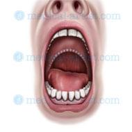 Uvulopalatopharyngoplasty ou UPPP