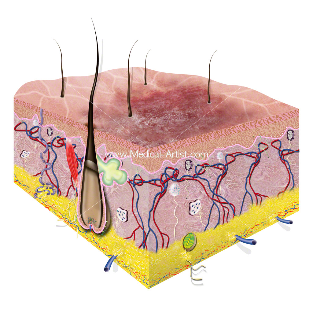 Skin Illustrations Amp Skin Anatomy Created By Qualified