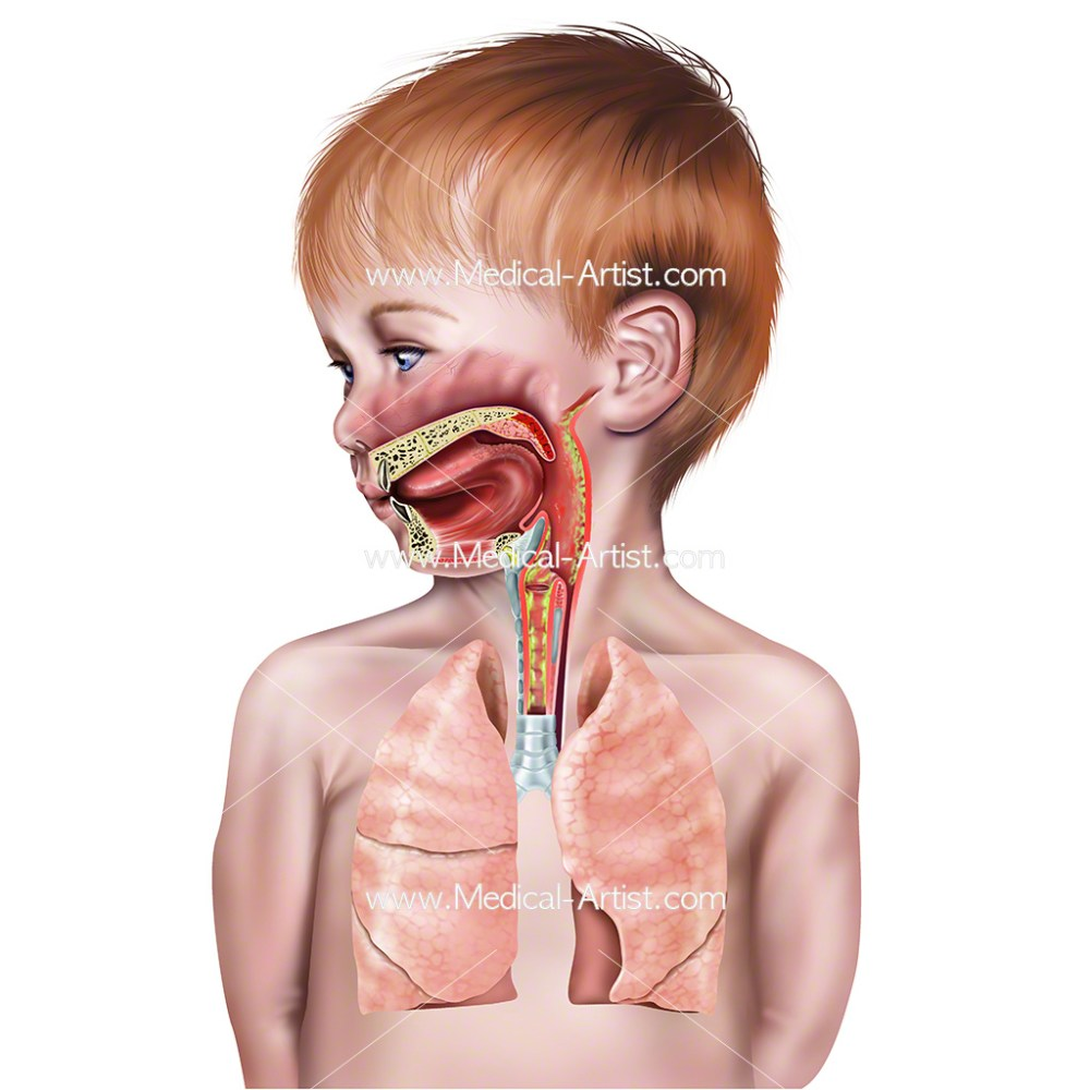 medium resolution of croup in child s airway