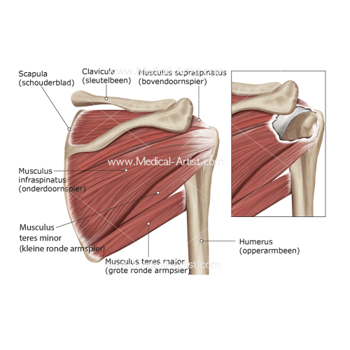 small resolution of posterior rotator cuff total rupture