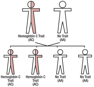 Hemoglobin C Diease and Trait laboratory diagnosis ...