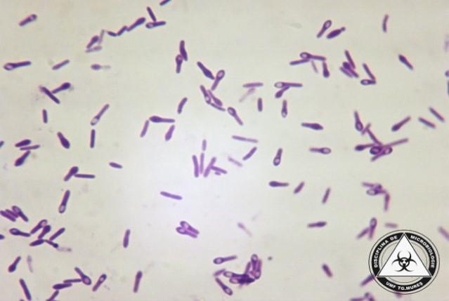 Clostridium Sporogenes Gram Stain