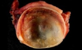 'Watchful waiting' rather than surgery for benign ovarian cysts