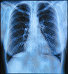 Lung X-ray