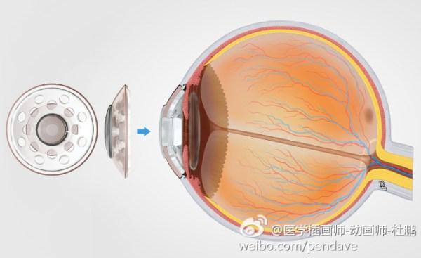 波士顿Ⅰ型人工角膜植入术 Boston Keratoprosthesis